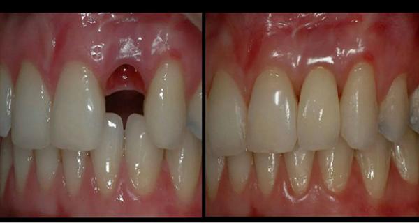 dintii se pot regenera