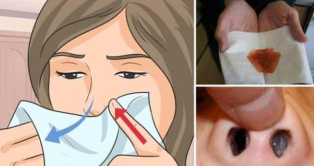 Cum m-am vindecat de afecțiunile nasului folosind cea mai simplă metodă de curățare.