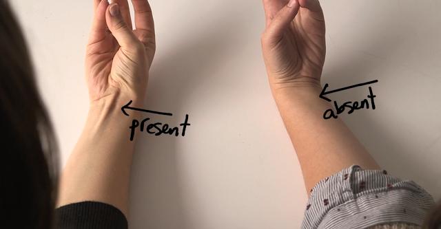 Ai un tendon proeminent lângă încheietura mâinii? Să fie oare de rău?