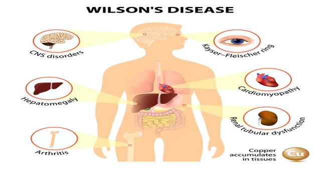 O boală letală dacă nu este diagnosticată la timp, boala Wilson