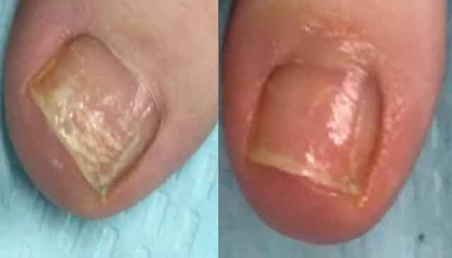 ce se intampla dupa ce ti-ai vopsit unghiile