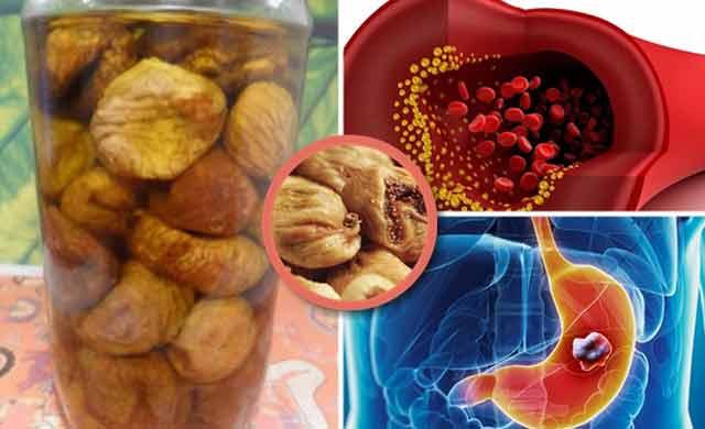 Rețeta ideală pentru calmarea problemelor stomacale și reducerea colesterolului
