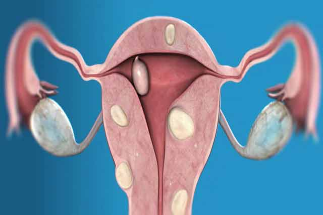 cu acest preparat nu te vei mai opera de fibrom