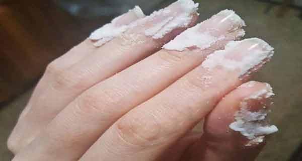 iata ce se intampla daca freci bicarbonat pe unghii