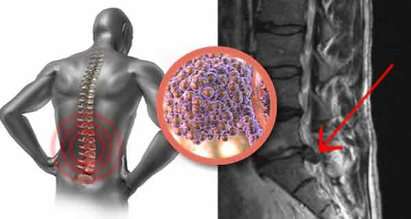 Forma agresivă și incurabilă de cancer omoară mii de persoane în fiecare zi și se manifestă prin dureri puternice de spate