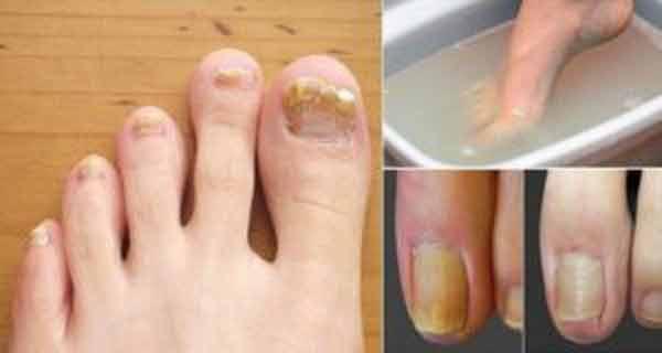 Până și medicii sunt uluiți de eficiența acestui remediu, folosește aceste preparate naturale pentru a scăpa de micoza unghiilor!