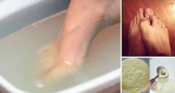 Cum să scapi de mirosul neplăcut al picioarelor pentru totdeauna! Ai nevoie de 3 ingrediente simple…