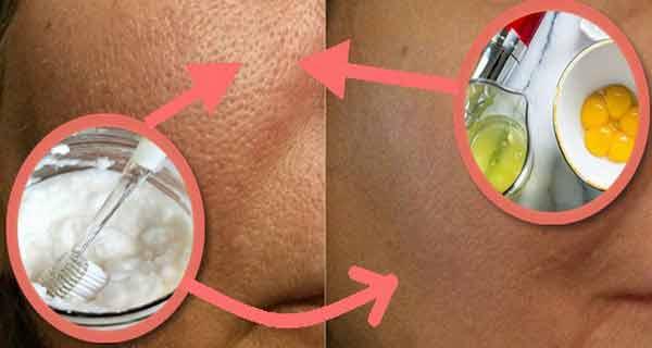 acest ingredient inchide porii