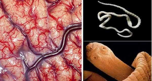 acest aliment duce la aparitia parazitilor la creier