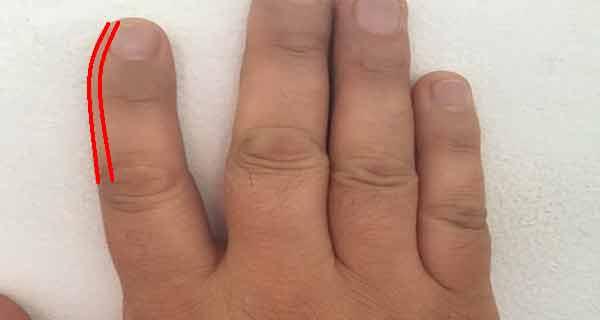 Ce înseamnă dacă degetul arătător este ușor curbat în interior? Sunt sigur că nu te gândeai la asta!