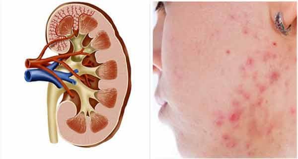 Semne ale bolilor renale pe care trebuie să le cunoști!