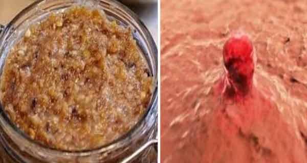O femeie in varsta de 56 de ani a descoperit tratamentul pentru cancerul ovarian!