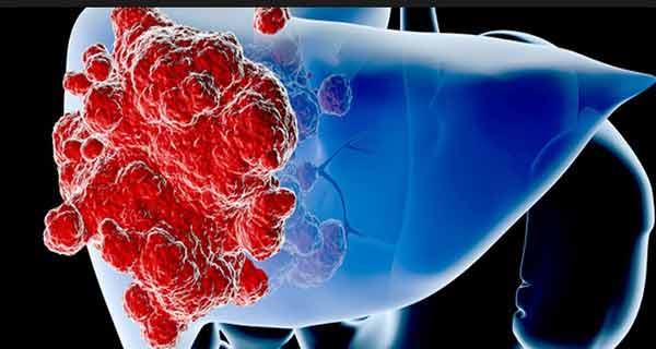 Știați că putem învinge cancerul cu una din armele sale cele mai puternice și anume alimentația?