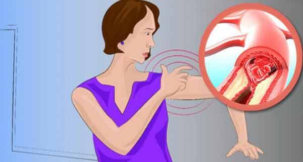 Organismul dumneavoastră începe să vă transmită semne cu o lună înainte de atacul cerebral- nu le ignorați!