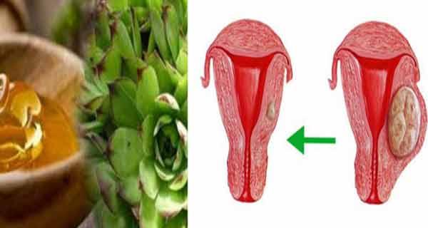 scapa de chisturile ovariene cu acest preparat