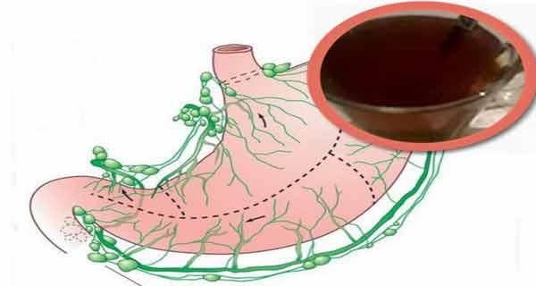 o cana din acest preparat restabileste mucusul stomacal
