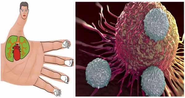 DETOXIFEREA CU SUCURI NATURALE SI TERAPIA CANCERULUI! RETETE DE SUCURI CU PUTERNIC EFECT ANTICANGERIGEN!