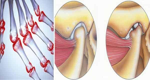masajul cu uleiuri te scapa de artrita