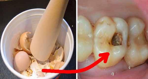 cariile se trateaza cu coji de oua