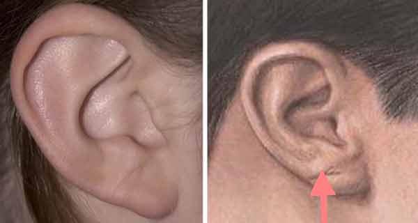 Micoze cutanate lobul urechii