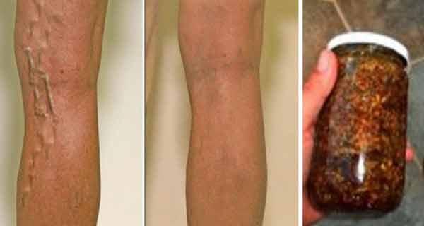 Unge picioarele cu acest ulei ca să scapi definitiv de varice!