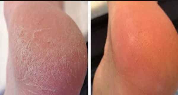 Folosește acest unguent pentru picioare și poți spune adio varicelor, bătăturilor și crăpăturilor din tălpi în doar 10 zile!