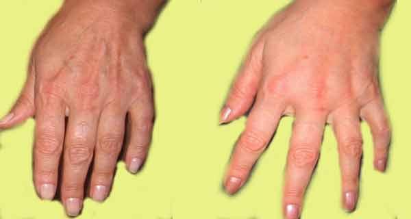 reteta miraculoasa pentru maini