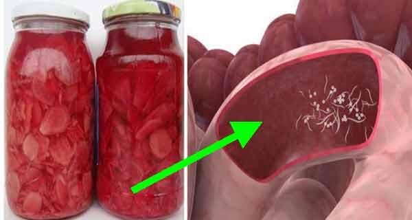Preparat astfel, ghimbirul elimină paraziții din intestine, coboară colesterolul și vindecă simptomele de artrită!