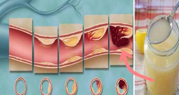 curata arterele de colesterol