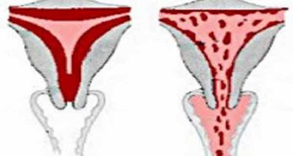 scapa de hemoragiile uterine
