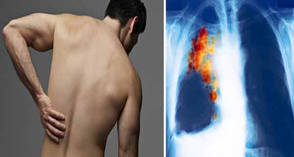semne timpurii ale cancerului pulmonar