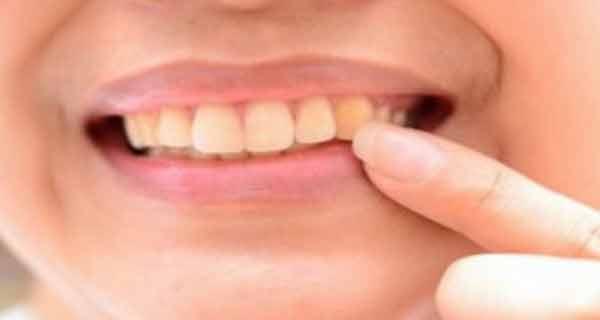 exista mai multe moduri naturale de albire a dintilor