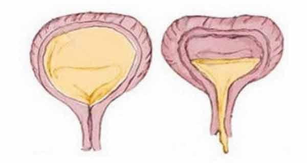 Incontinența urinară – Mai mult decât o boală socială! Modalități de a redobândi controlul asupra vezicii!