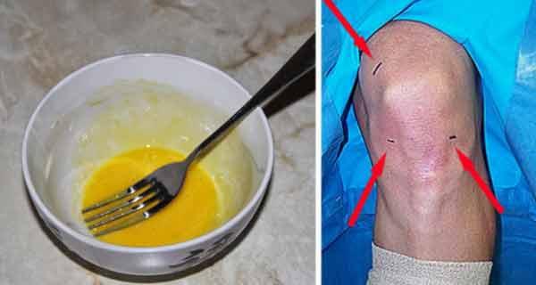 Un pacient căruia nu i s-au mai dat șanse să meargă s-a repus pe picioare cu acest remediu natural!