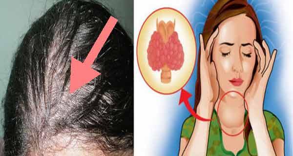 bolile tiroidei afecteaza femeile