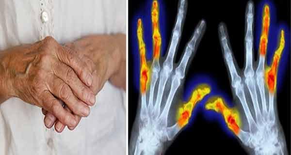 Tratament natural pentru poliartrita reumatoidă. Trebuie încercat!