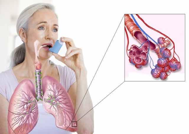 Uite așa poți scăpa de astm folosind doar ingrediente naturale!