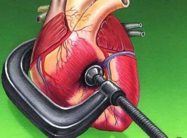 Cea mai simplă cură naturală în hipertensiunea arterială!