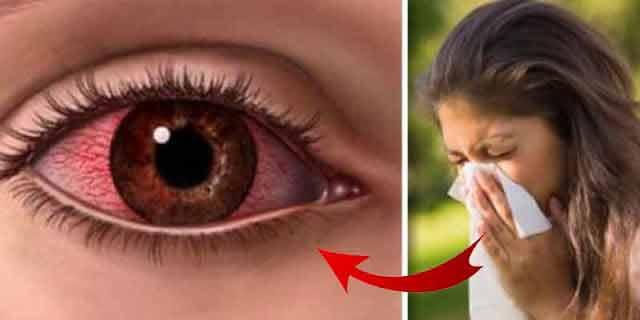 Iată cum scăpăm de alergiile de primăvară!