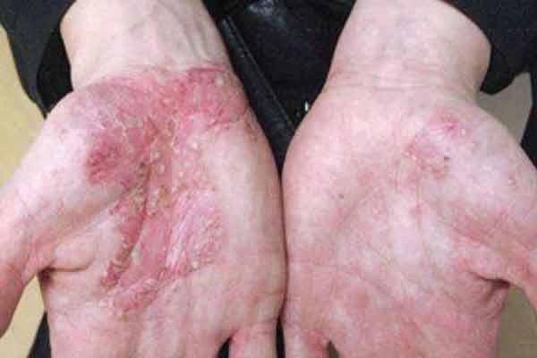 foloseste natura ca sa scapi de problemele cu pielea