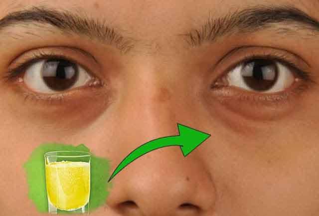 Tratament cu mușețel și bicarbonat împotriva cearcănelor, pungilor de sub ochi şi pleoapelor umflate. REȚETA!