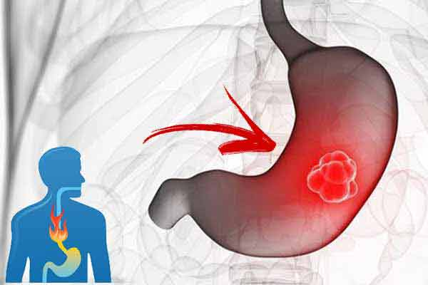 arsurile la stomac pot prevesti cancerul