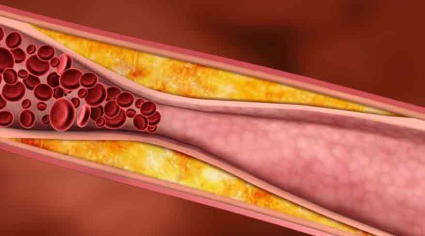 cum reducem colesterolul rau
