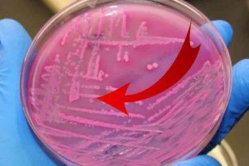 s-a descoperit un nou antibiotic foarte eficient