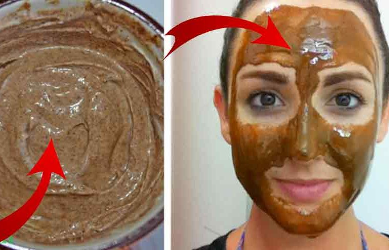 masca riduri acnee