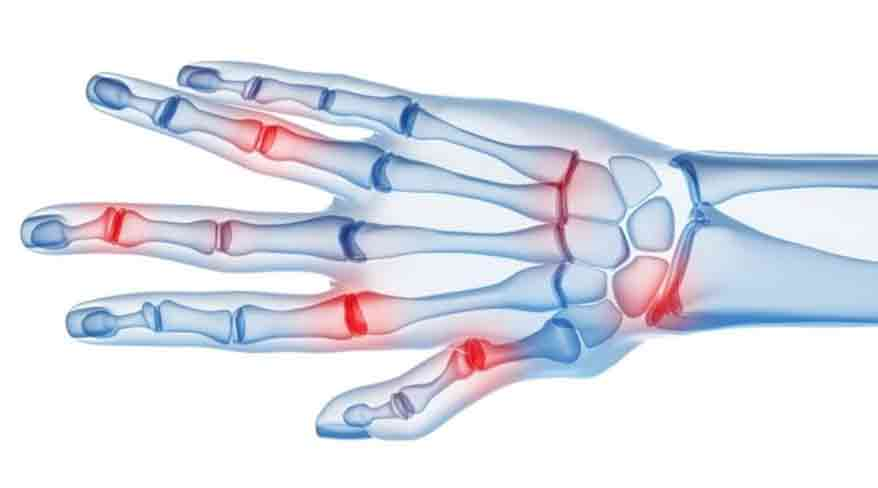 Artrita reumatoida   bekkolektiv.com