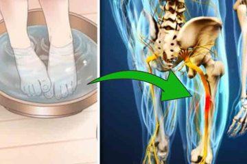 cum scapam de durerile sciatice cu apa fiarta