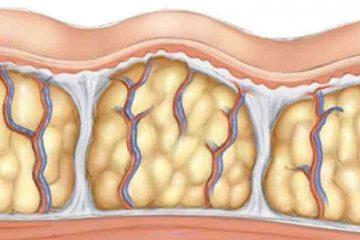 care sunt cauzele aparitiei celulitei si cum scapam de ea