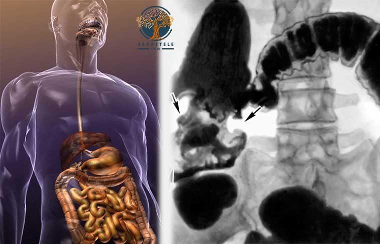 cum sa eviti sindromul colonului iritabil