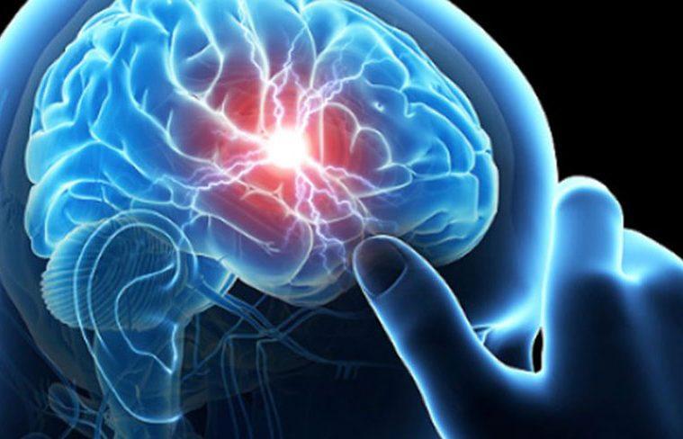 cum scapi de migrene in mod natural